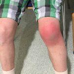Infiltrazioni acido ialuronico al ginocchio, quanto costa e quali sono le controindicazioni