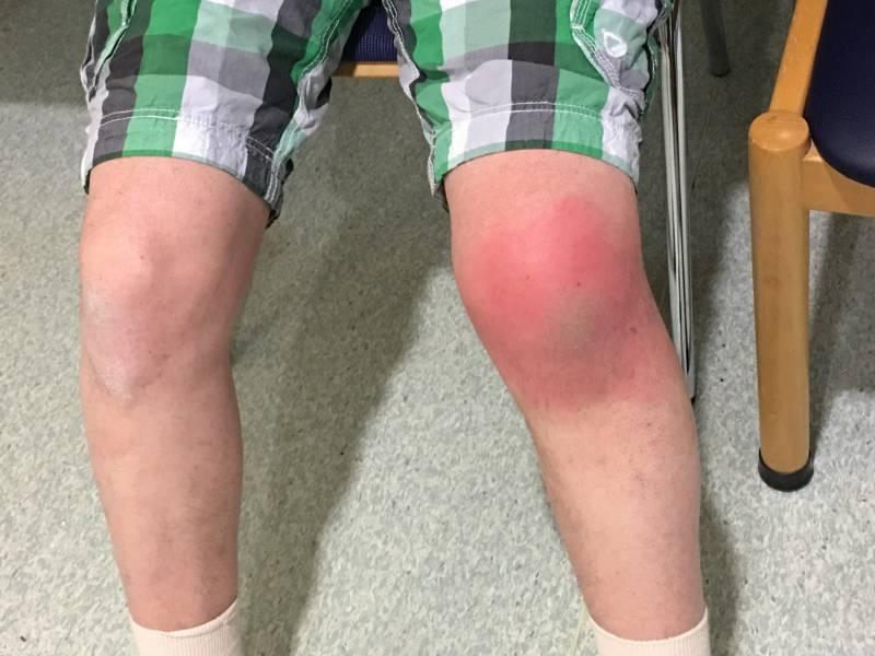 Infiltrazioni acido ialuronico al ginocchio