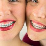 Tutto sugli apparecchi mobili per raddrizzare i denti storti