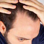 Tutto quello che si deve sapere sul trapianto di capelli