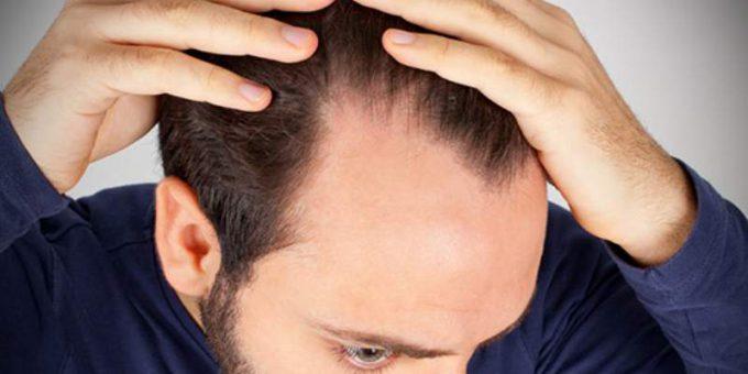 caduta_capelli_uomo_800x449